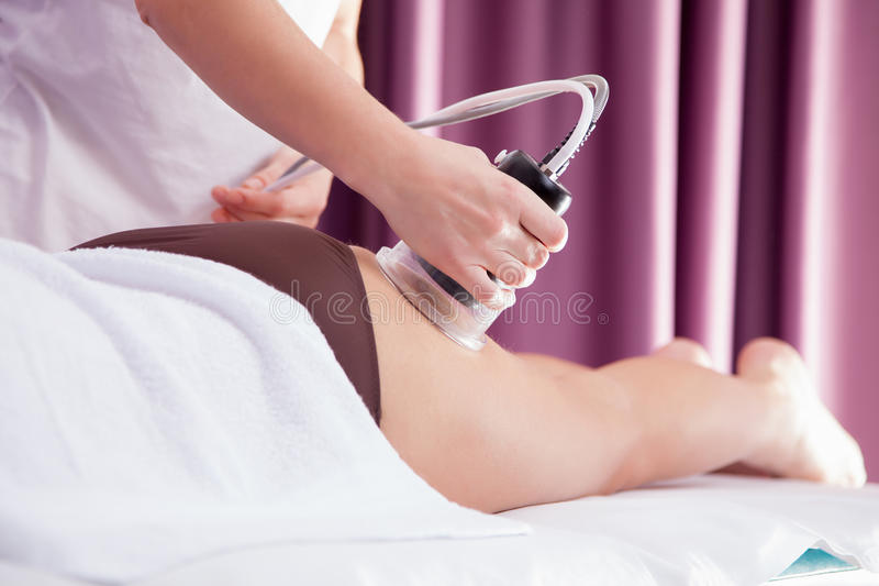 Cellulite treatment royalty free stock images