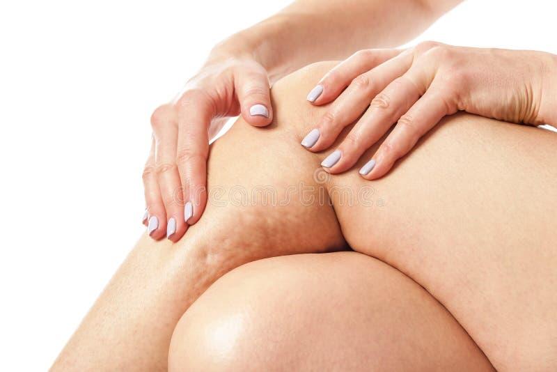 Cellulite und lose Haut lizenzfreie stockbilder