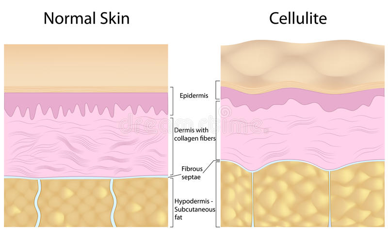 Cellulite Versus Smooth Skin Royalty Free Stock Photo