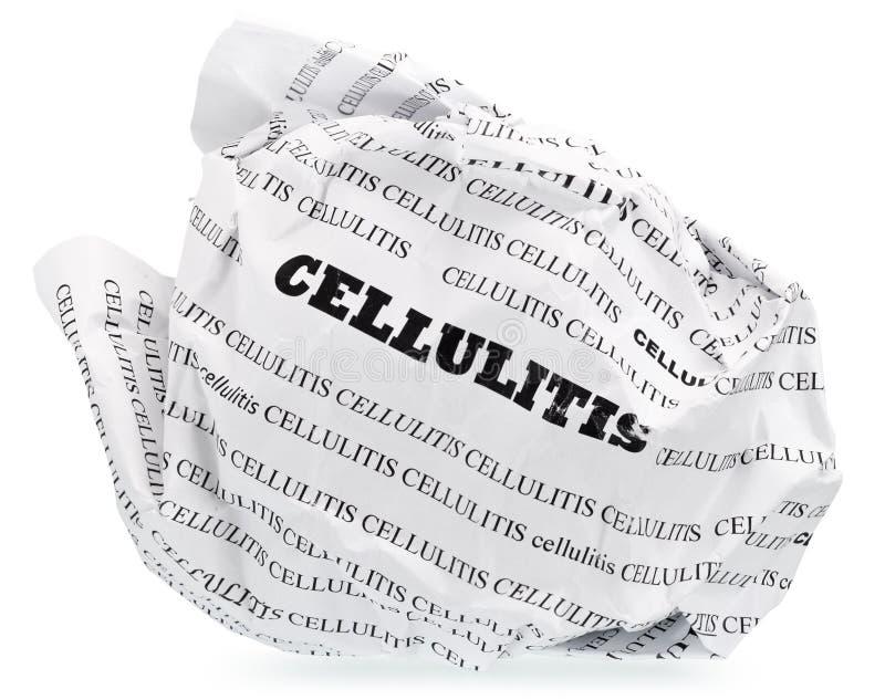 Cellulite is zenuwachtig? Werp stock foto