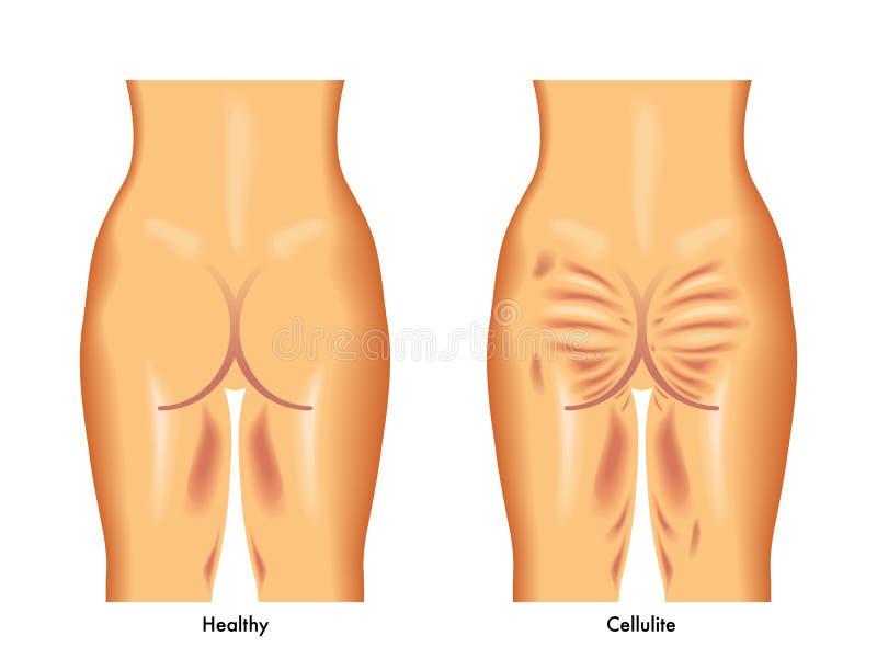 Cellulites illustration stock