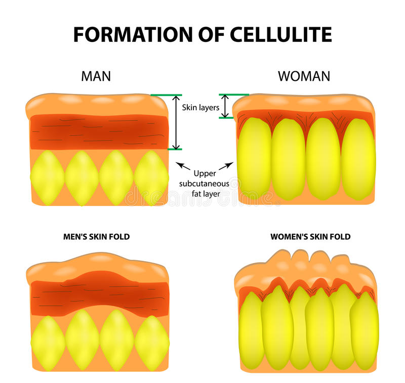 Cellulitis and skin aging in men and women. Infographics. Vector illustration on background.  vector illustration