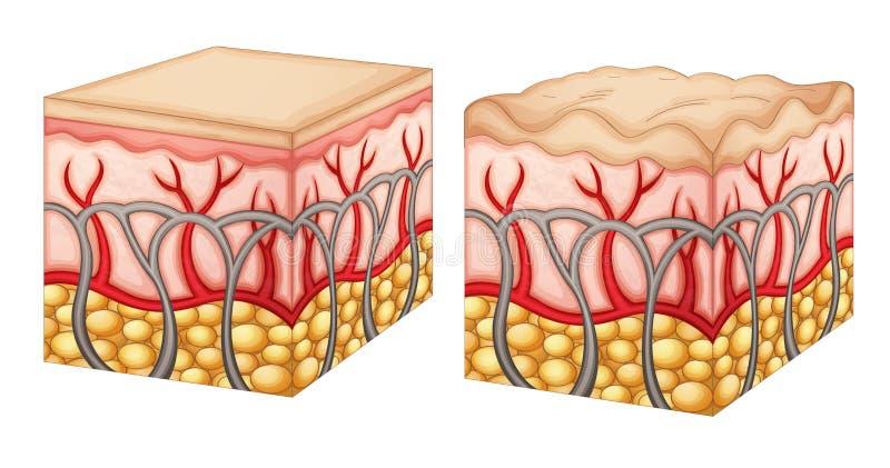 Celulitis ilustración del vector