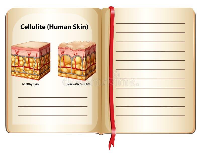 Celulitis debajo de la piel humana ilustración del vector