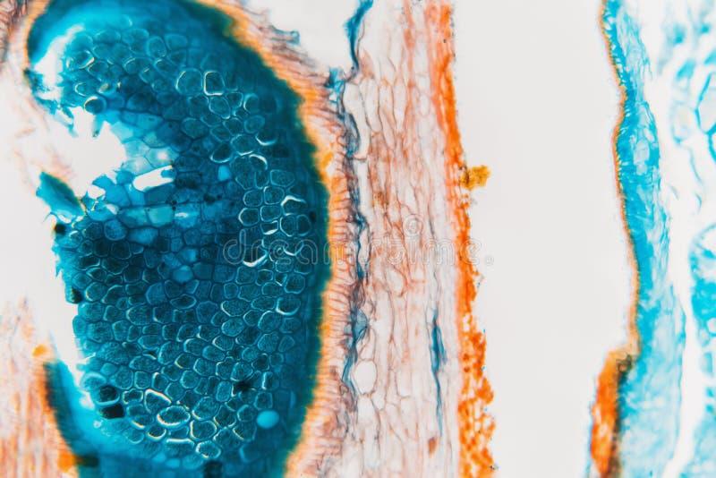 Centeno microscópico preparado del gorgojo del laboratorio médico imagen de archivo