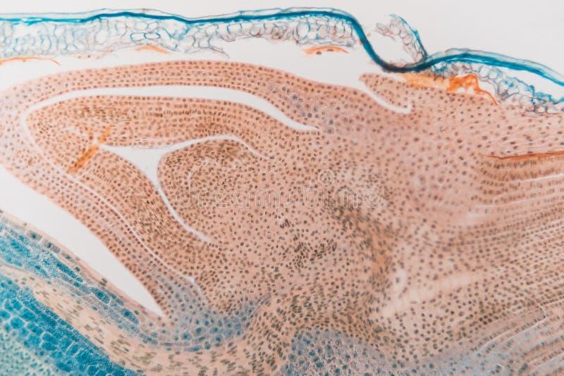 Centeno microscópico preparado del gorgojo del laboratorio médico imagenes de archivo