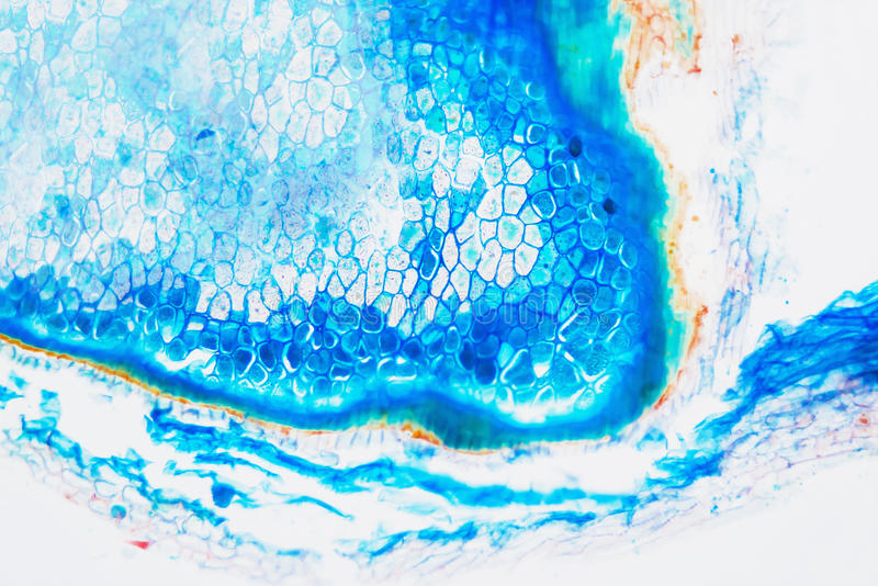 Centeno microscópico preparado del gorgojo del laboratorio médico fotografía de archivo libre de regalías
