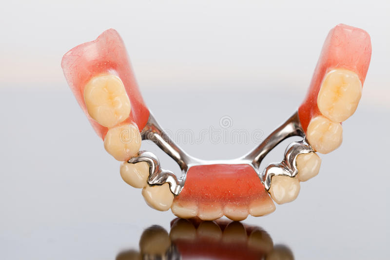 Ceracim crowns and dental prosthesis. A photograph of a dental skeletal prosthesis with ceramic crowns and dolder stock photo