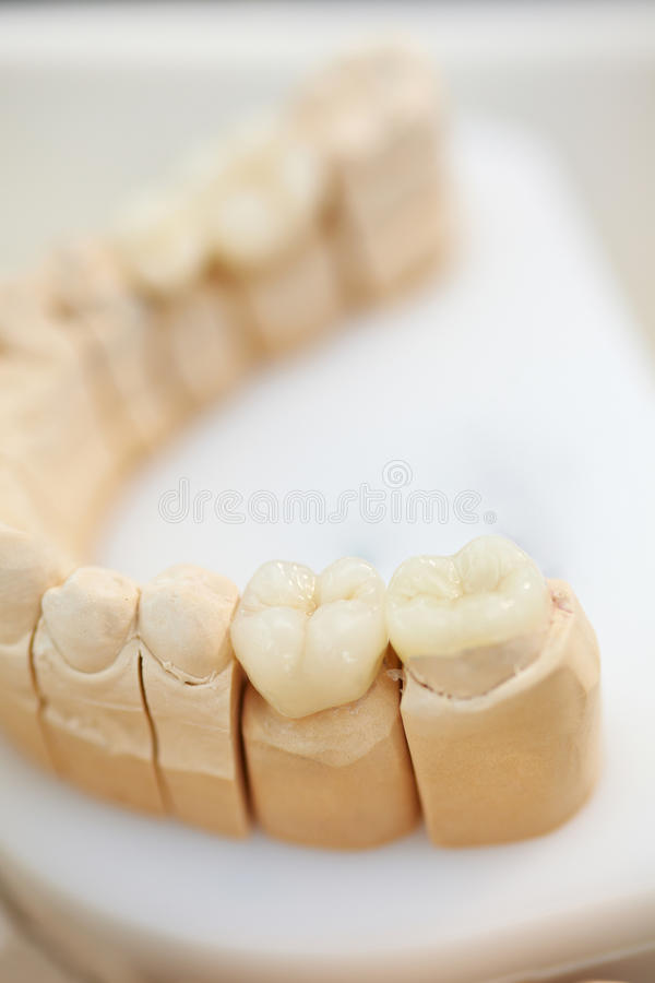 Download Ceramic coronas stock image. Image of copy, oral, inlay - 11639097