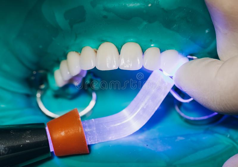 Ceramic front crowns, green background. 8 units dental veneers stock photos