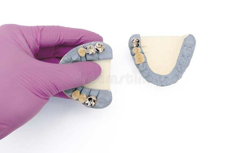 ceramic-metal crowns and bridges on the upper and lower jaws. dental prosthetics stock photos