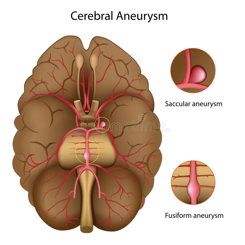Cerebral aneurysm royalty free illustration