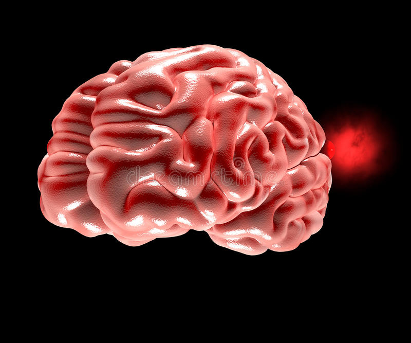 Cerebral aneurysm, hjärnhuvud vektor illustrationer