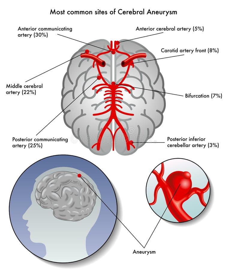 Cerebral aneurysm. Medical illustration of the most common sites of cerebral aneurysm vector illustration