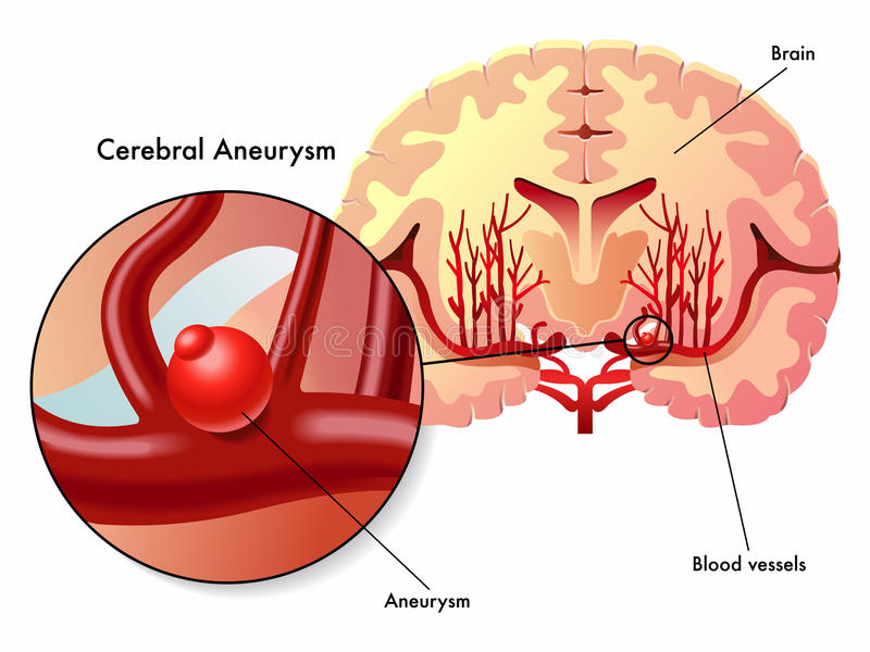 Cerebral aneurysm. Medical illustration of the symptoms of cerebral aneurysm vector illustration