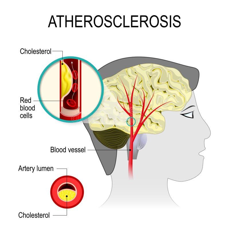 Cerebral artär med atherosclerosis royaltyfri illustrationer