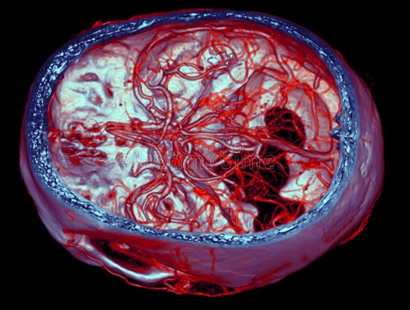 Brain arteries, CT images stock photo