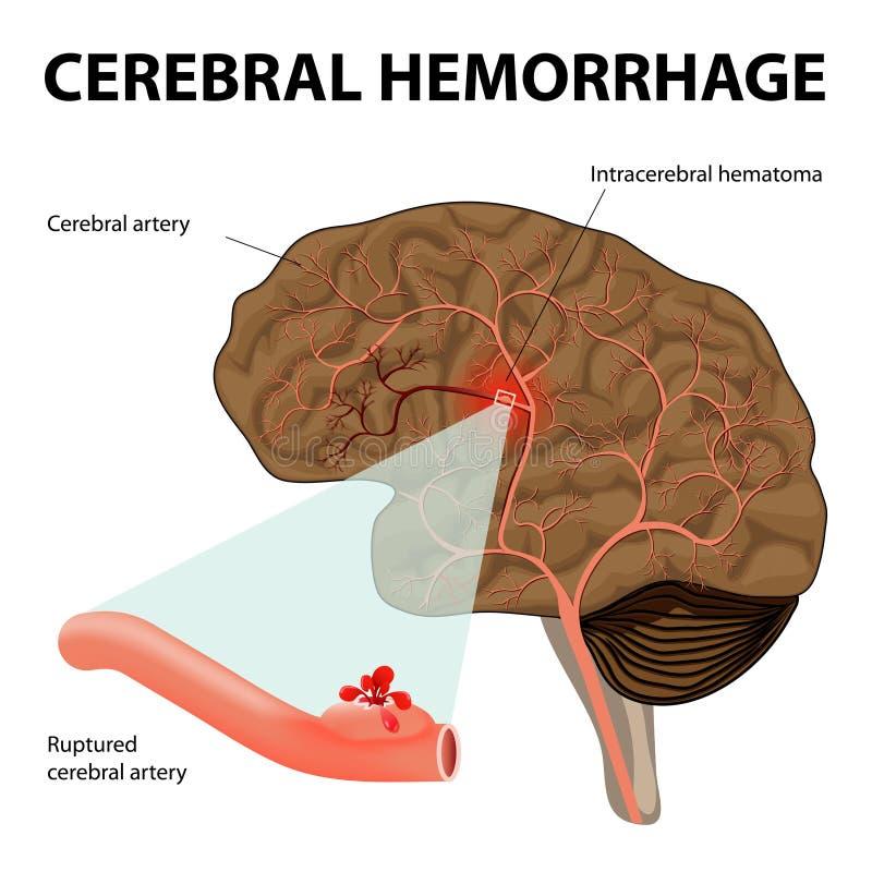 Cerebral blödning royaltyfri illustrationer
