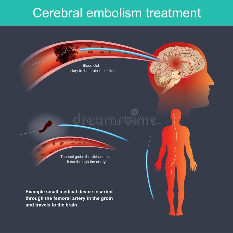 Cerebral blodproppbehandling vektor illustrationer