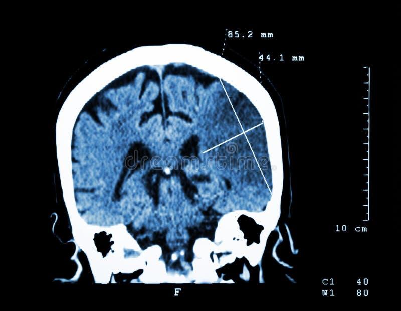 Cerebral infarkt på den vänstra halvklotet (den Ischemic slaglängden) (CT-bildläsning av hjärnan): Medicin- och vetenskapsbakgrun royaltyfri bild