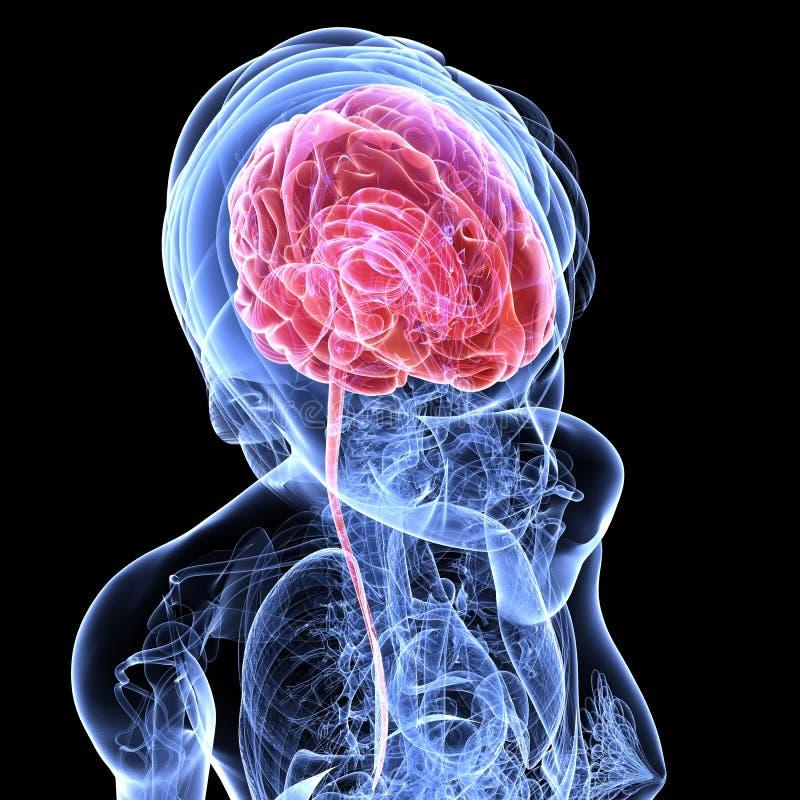 Cerebral Tumor Royalty Free Stock Image