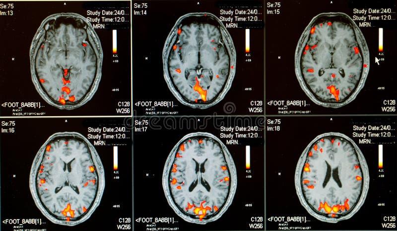 Cerebro activo humano imagenes de archivo