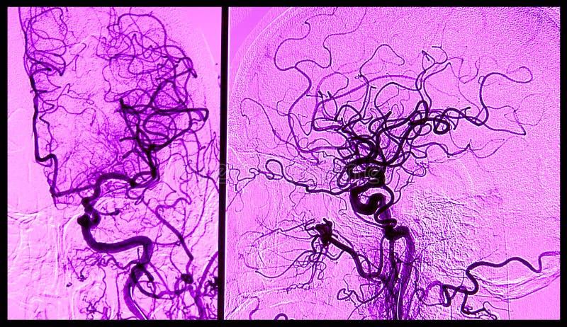Cerebro angiograhy, arteriografía imagen de archivo