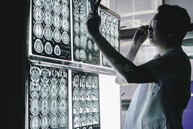 Cerebro de la demencia en MRI imagen de archivo libre de regalías