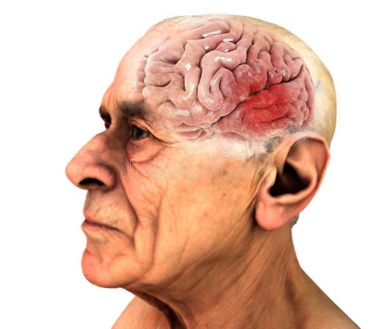 Cerebro, enfermedades degenerativas, ` s, ` s de Alzheimer de Parkinson Viejo hombre ilustración del vector