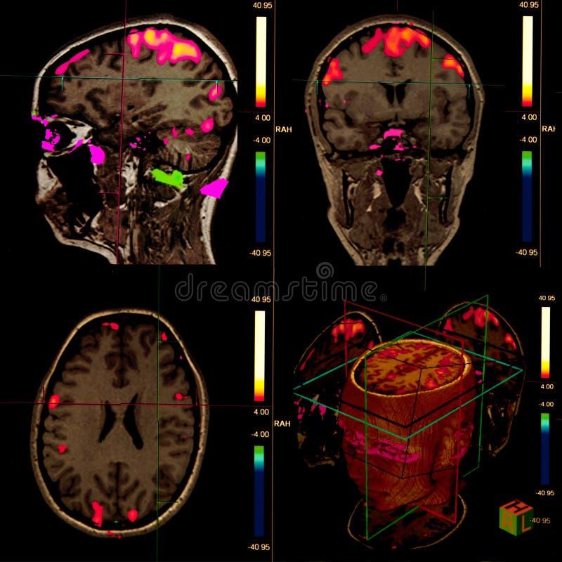 Cerebro funcional de resonancia magnética fotografía de archivo