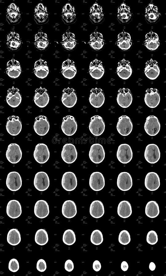 Cerveau CT affichant la purge intra-crânienne photographie stock
