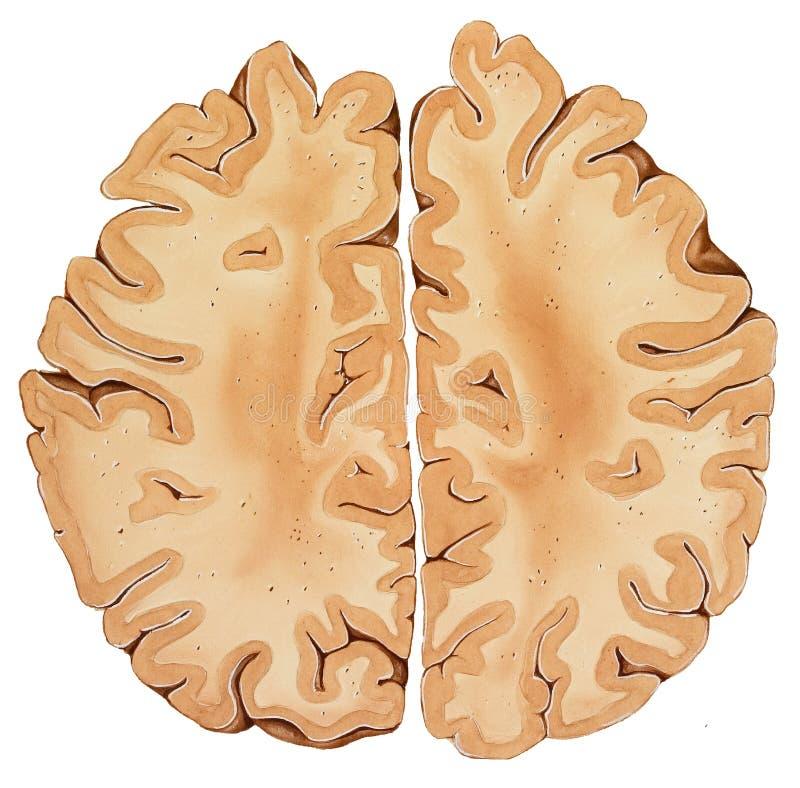 Cerveau - une section transversale plus élevée de région illustration stock