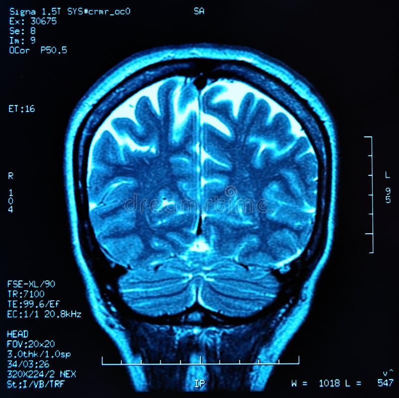 Cervello MRI immagini stock