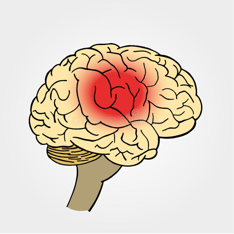 Cervello nel vettore Emicrania Posto di dolore in cervello illustrazione vettoriale
