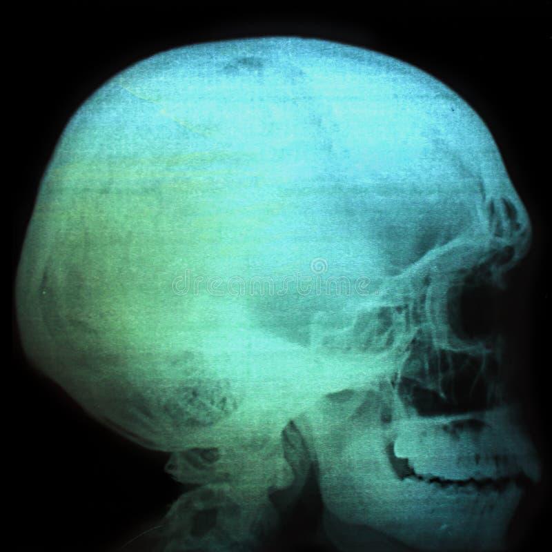 Cervello, ricerca, ct, mri, risonanza, magnetico, umana, tomografia, raggi x, testa, rappresentazione, immagine, computer, salute immagine stock libera da diritti