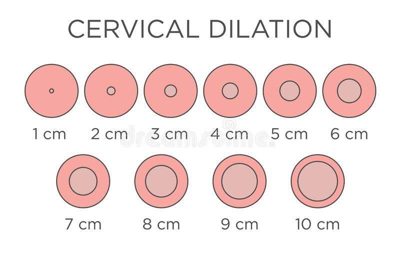 Cervial Dilation Medical Illustration - chart in centimeters. Cervical Dilation Medical Illustration & chart in centers royalty free illustration