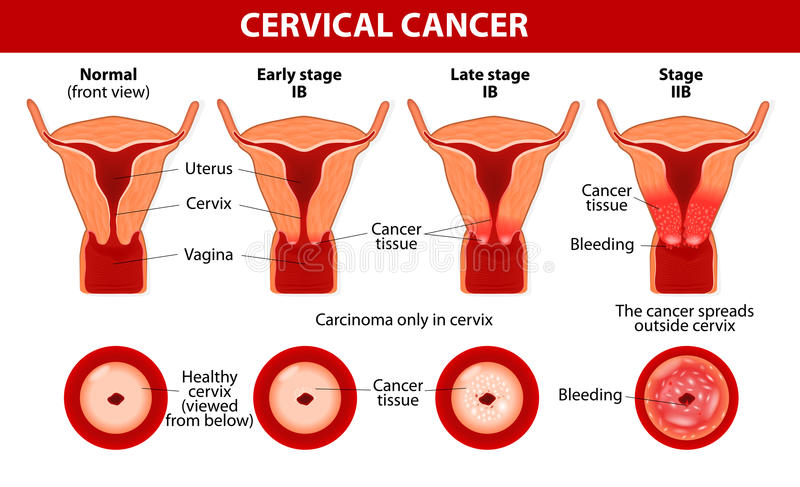 Cervical Cancer. Carcinoma of Cervix royalty free illustration