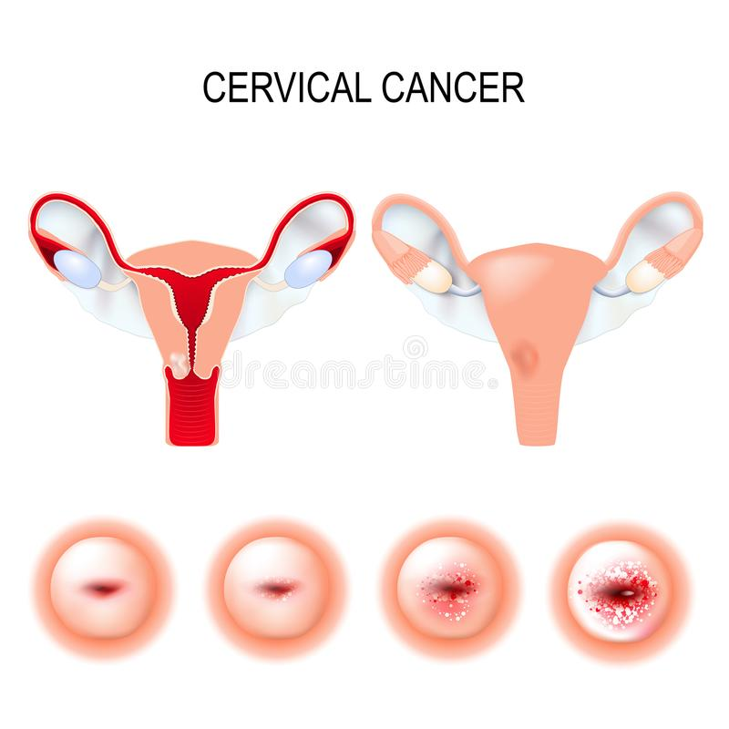 Cervical cancer staging. Carcinoma of Cervix. Malignant neoplasm arising from cells in the cervix uteri. Vaginal bleeding royalty free illustration
