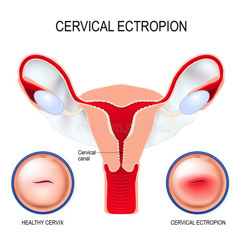 Cervical ectropion. cervical erosion. Cervical ectropion cervical eversion It is a condition in which cells that normally line the inside of the cervical canal stock illustration