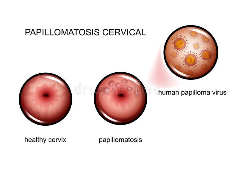 papilloma a virus)