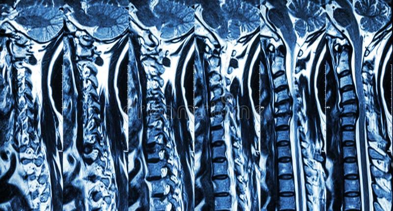 Cervical spondylosis with disc herniation ( MRI of cervical spine : show cervical spondylosis with disc herniation compress spinal royalty free stock images