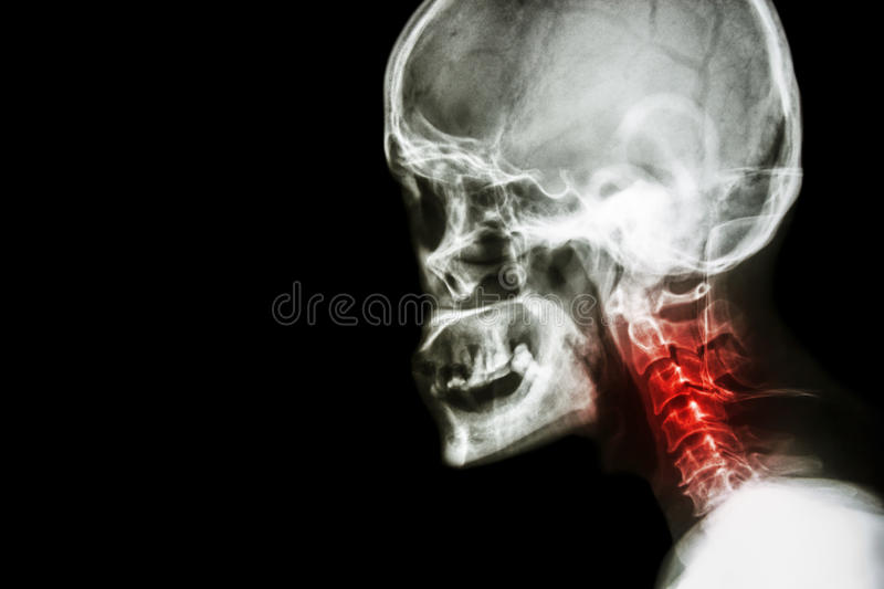 Cervical spondylosis . film x-ray skull lateral view and neck pain . stock photos
