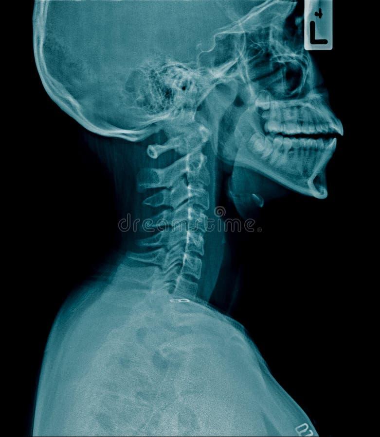 Cervicale stekelspondylosis stock foto