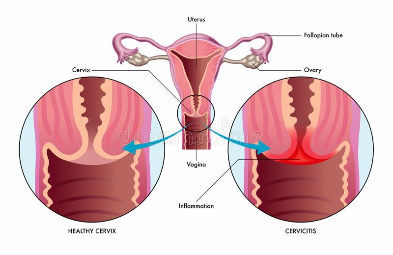 Cervicitis medische illustratie vector illustratie