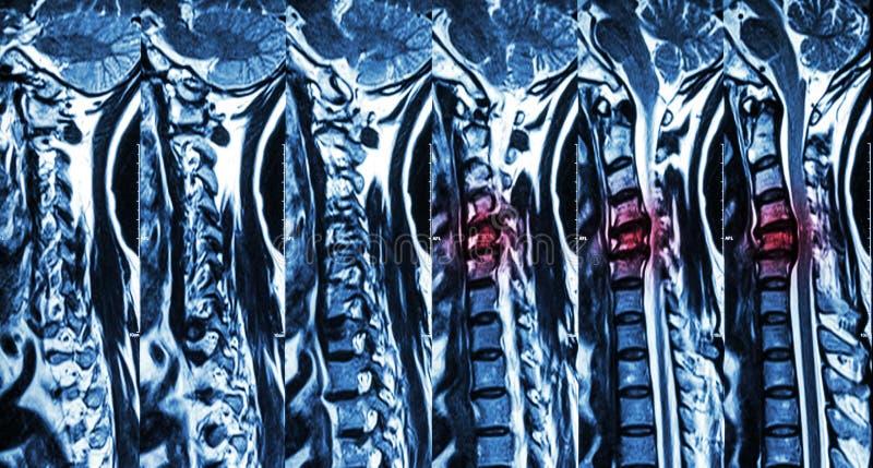 Cervikal spondylosis med diskettherniationen (MRI av den cervikala ryggen: visa cervikal spondylosis med den ryggrads- disketther royaltyfri fotografi