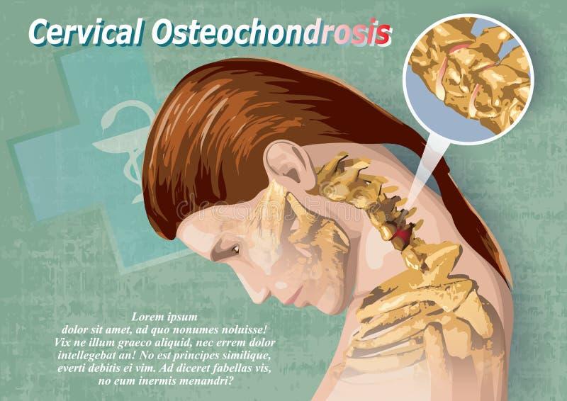 Cervikala Osteochondrosis vektor illustrationer