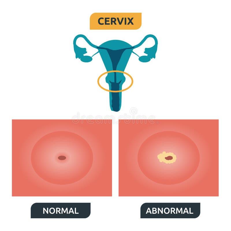 cervix royalty ilustracja