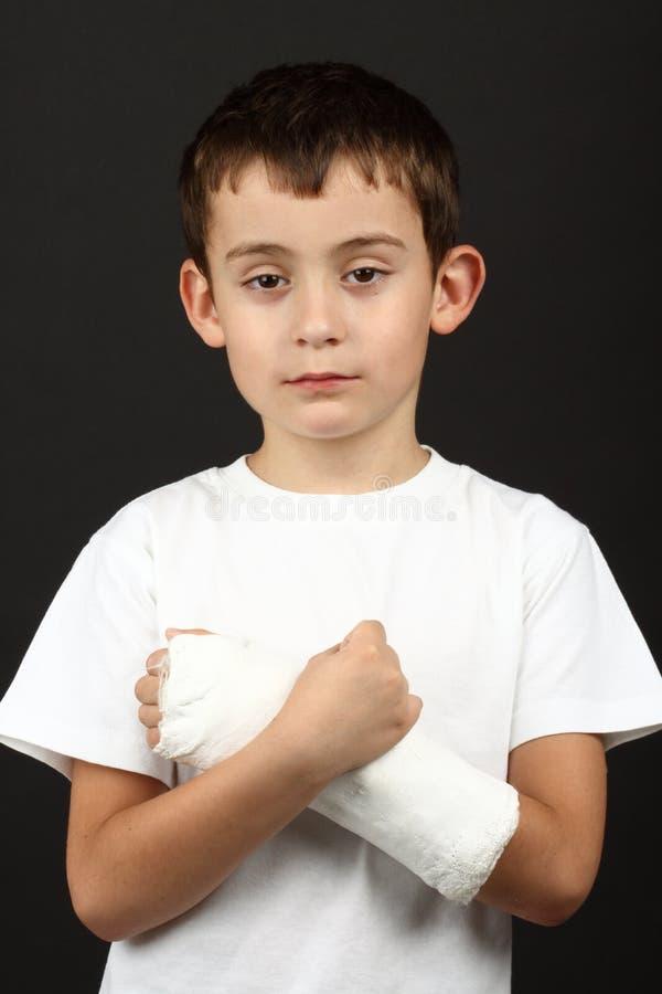 chłopiec łamająca lana ręka zdjęcia stock