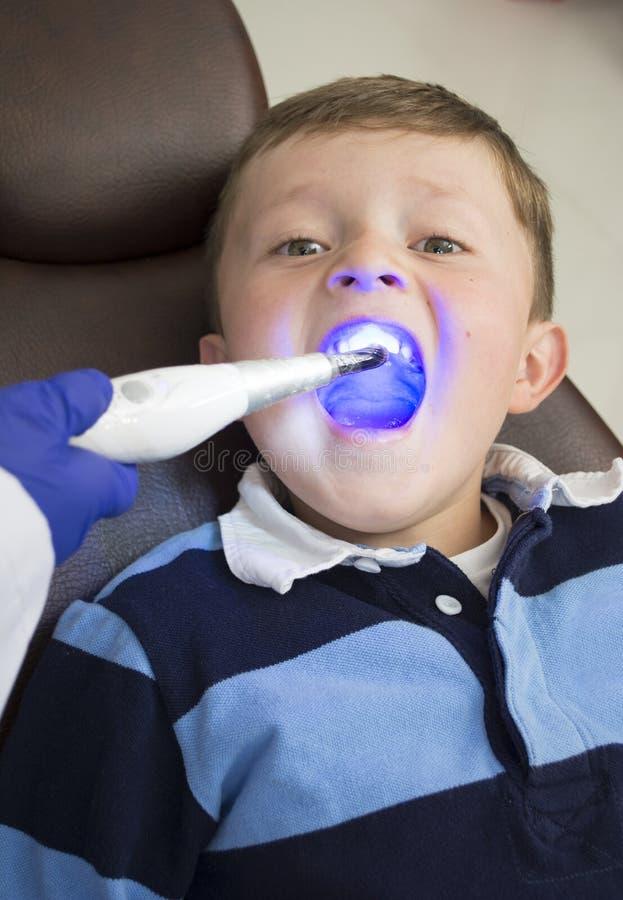 Chłopiec otwiera jego usta szerokiego podczas inspekci oralny cavi zdjęcie stock