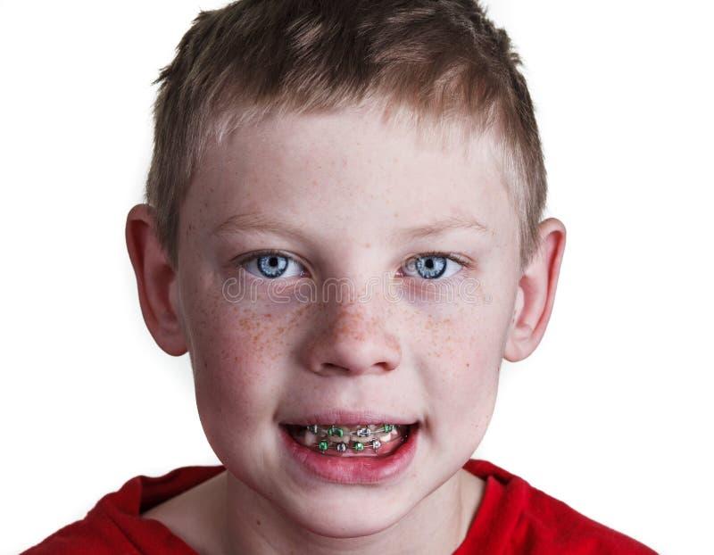 Chłopiec z brasami zdjęcia royalty free